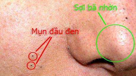 Mụn đầu đen (các loại mụn thường gặp) và sợi bã nhờn (không phải là mụn)
